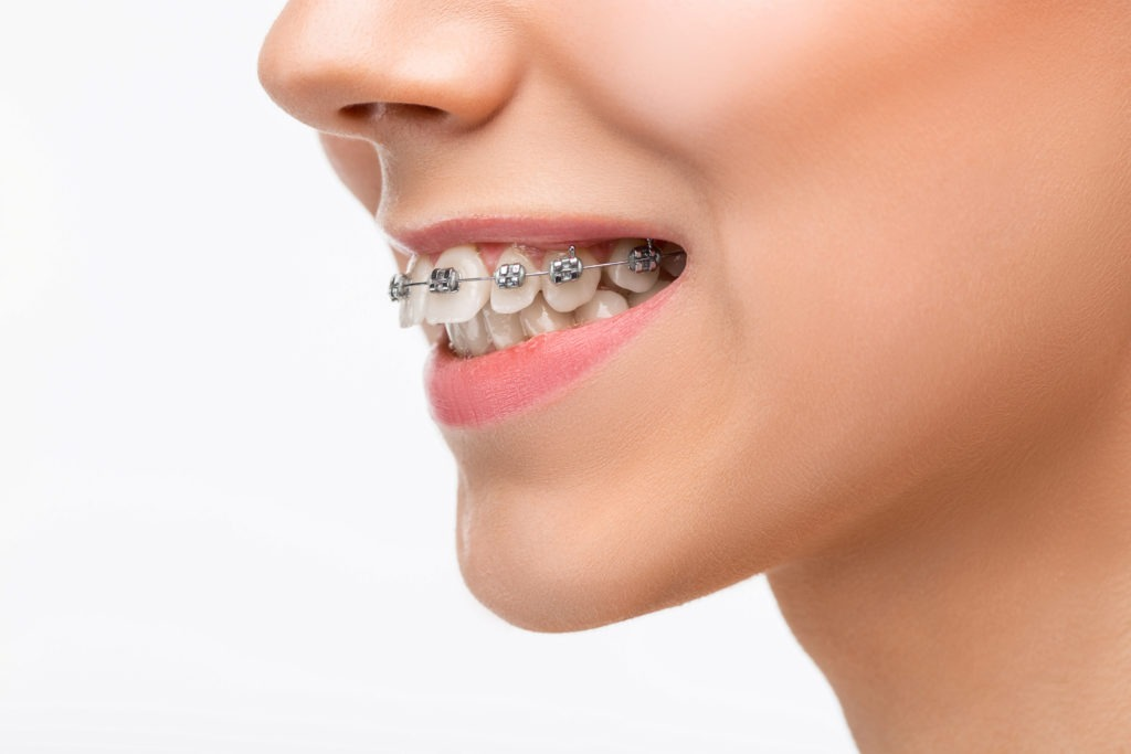 Beautiful young woman with teeth braces on gray