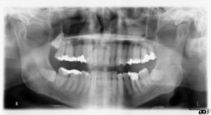 x-ray image of teeth