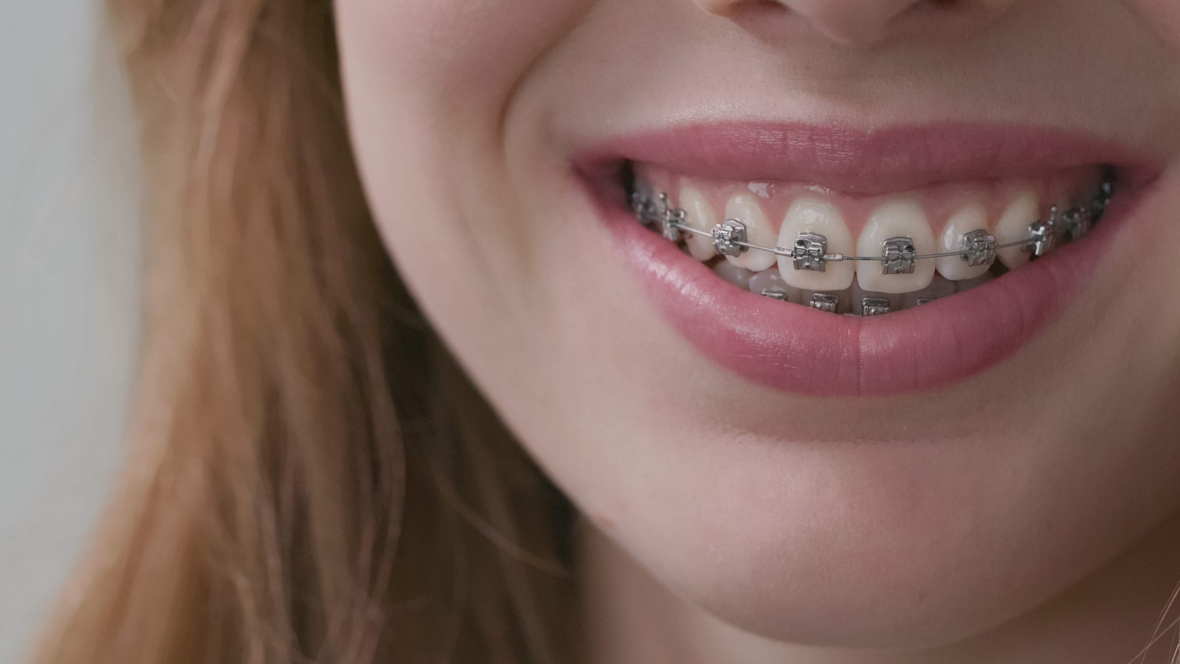 Carriere braces
