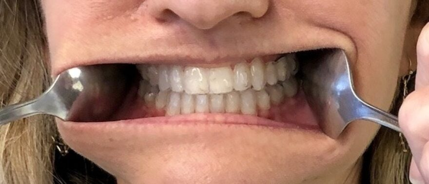 Bee Cave Orthodontics Invisalign Appointment Front