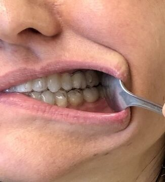 Use the spoon on your mouth left side to show your Invisalign on the left