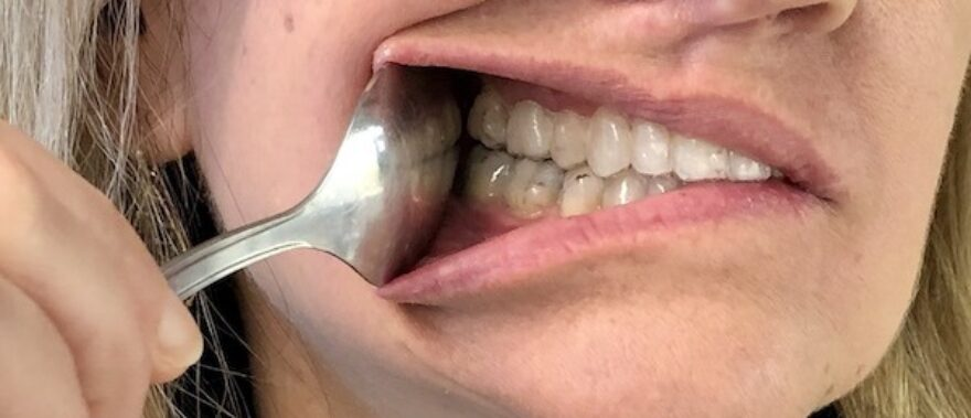 Use the spoon on your mouth right side to show your Invisalign on the right